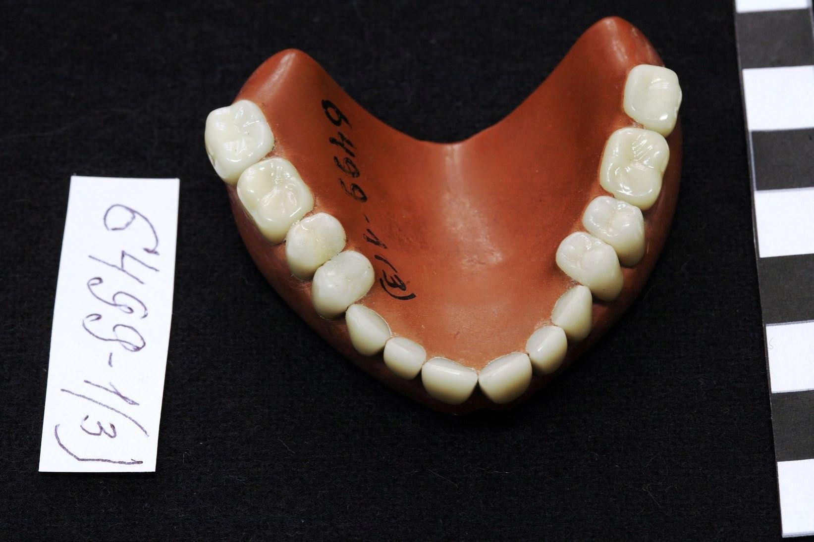Рис. 9. Зубной протез верхней челюсти, принадлежавший Н.Н. Миклухо-Маклаю.
